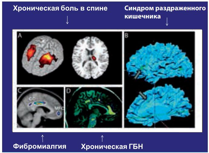 Морфометрические изменения в головном мозге при хронической боли