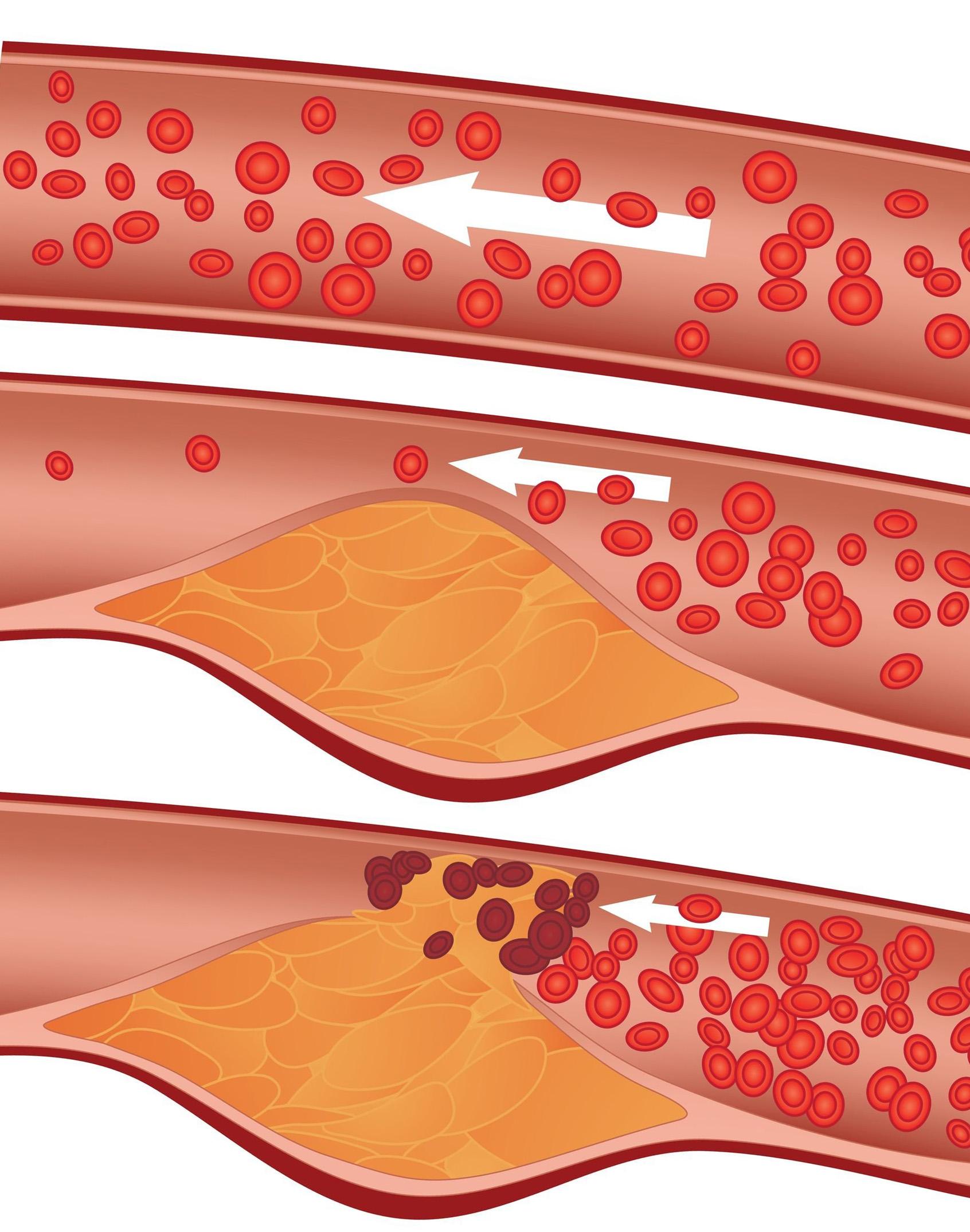Артериосклероз