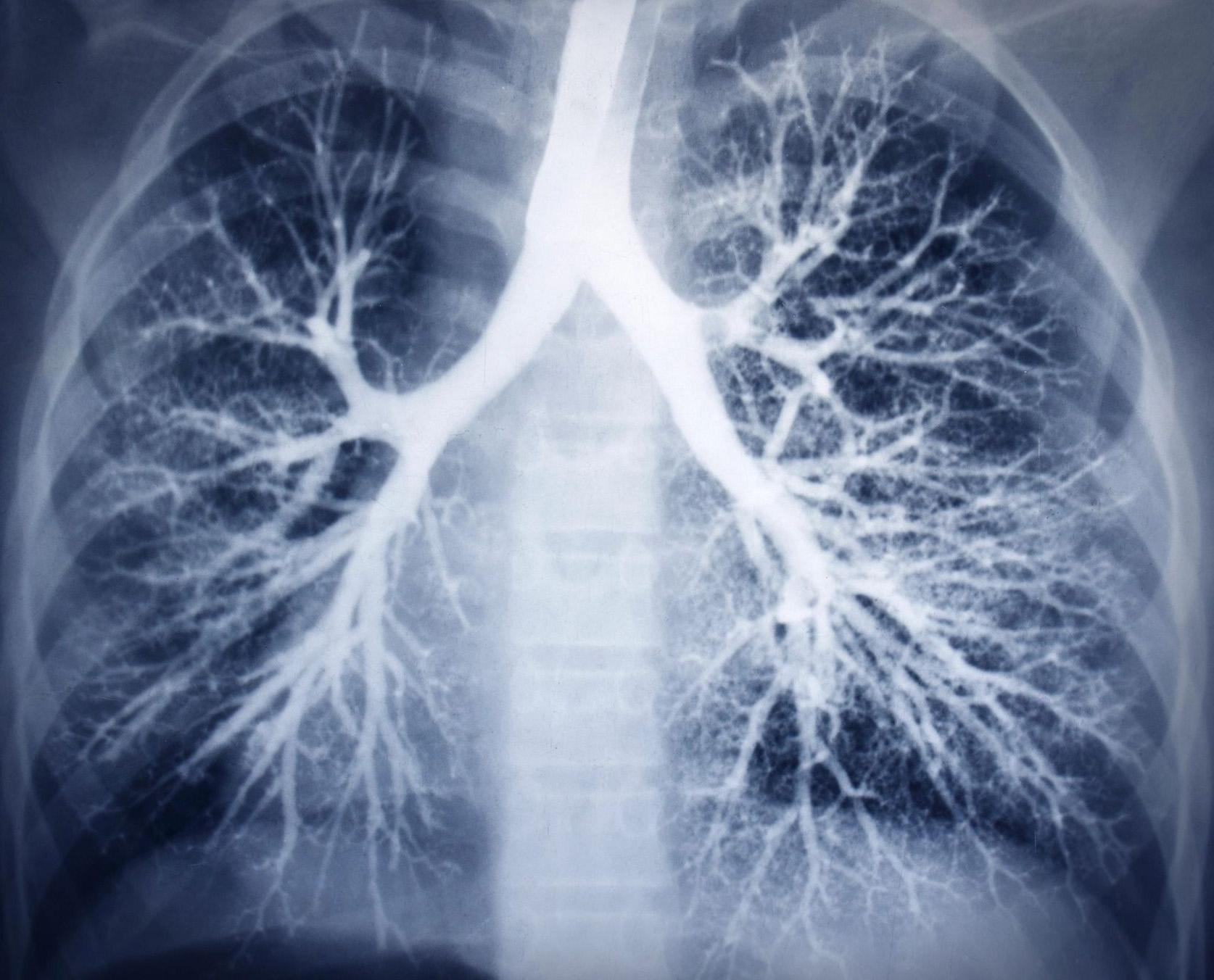 бронхит на рентгене