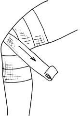 Черепашья повязка на область коленного сустава – сходящаяся