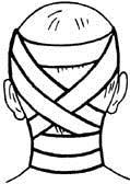 Циркулярная повязка на шею, закрепленная крестообразными ходами на голове