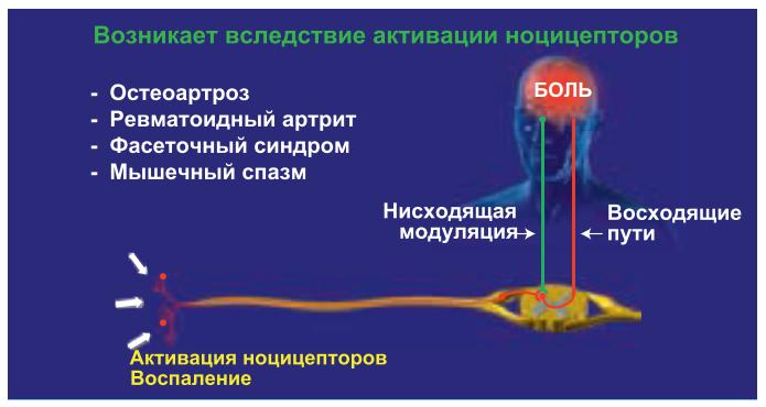 Hоцицептивная боль