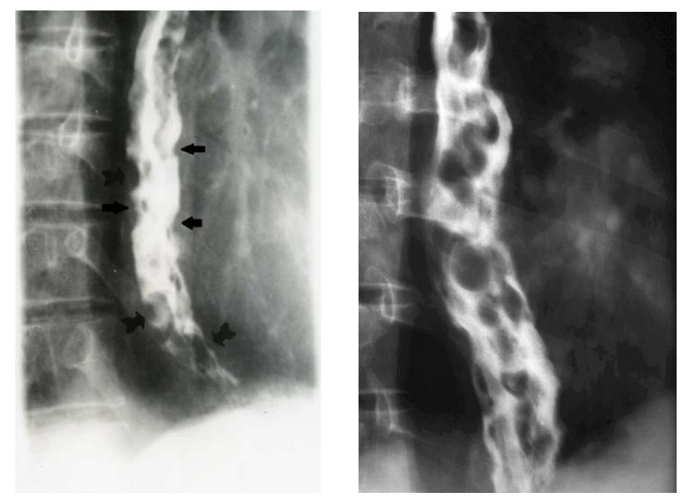 Контрастная рентгенография пищевода
