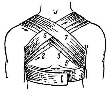 Крестообразная повязка на грудную клетку