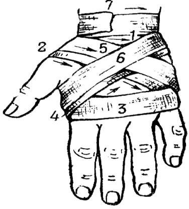 крестообразная повязка на кисть