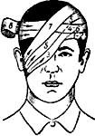 монокулярная повязка на правый глаз