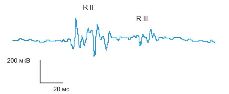 Ноцицептивный флексорный рефлекс