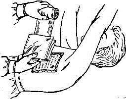 Окклюзионная повязка на грудную клетку