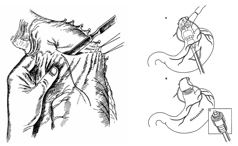 Операция Таннера, аппаратная транссекция пищевода