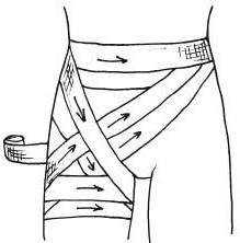 Передняя колосовидная повязка области тазобедренного сустава