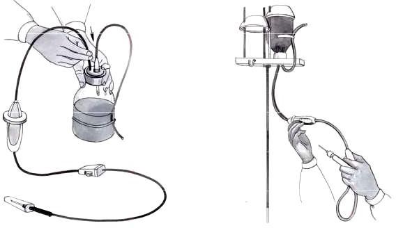 Подготовка системы для внутривенного вливания лекарственных препаратов