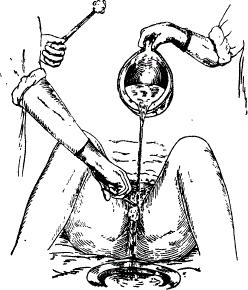Подмывание тяжелобольной пациентки