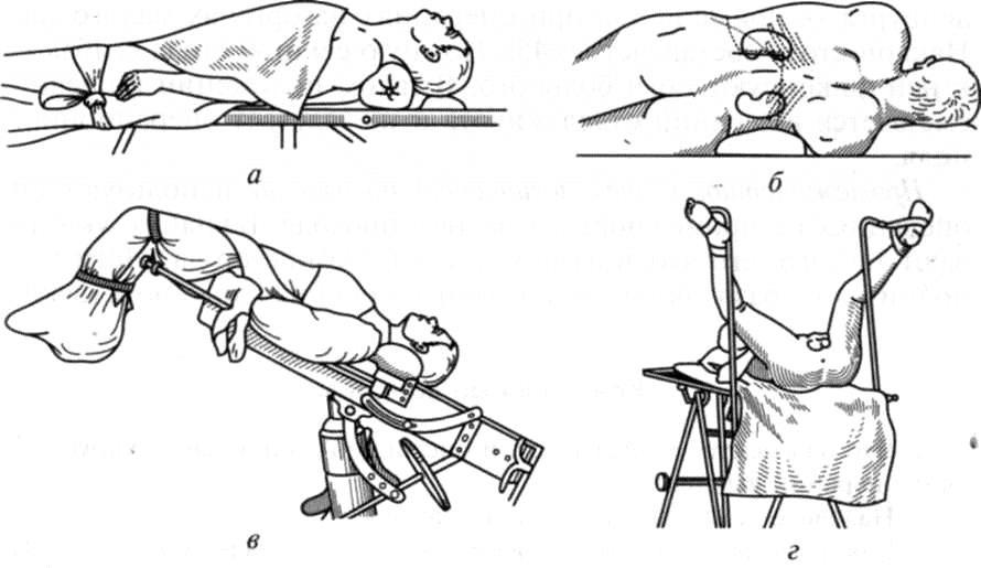 Положение больного на операционном столе