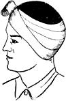 Повязка на область уха
