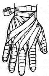 повязка «перчатка»
