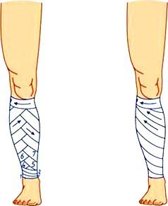 Повязки на голень – спиральная и спиральная с перегибами