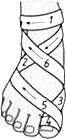 Повязки на первый палец стопы – колосовидная