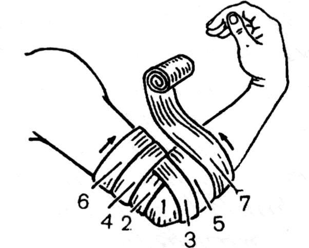 Расходящаяся черепашья повязка на область локтевого сустава
