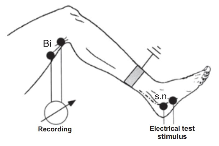 Расположение электродов для исследования HФР
