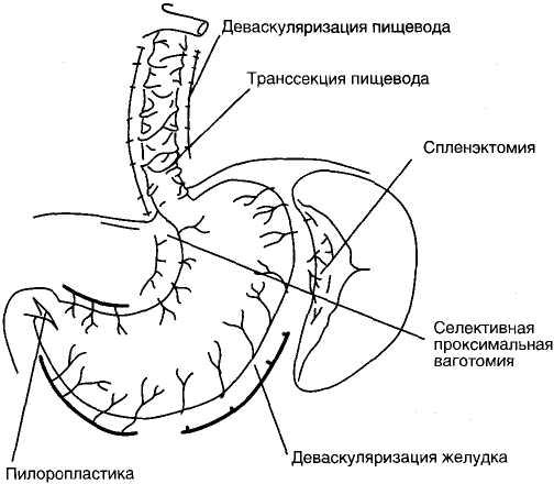 Схема операции М. Сугиура