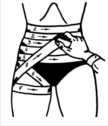 спиральная повязка на живот, укрепленная на бедре