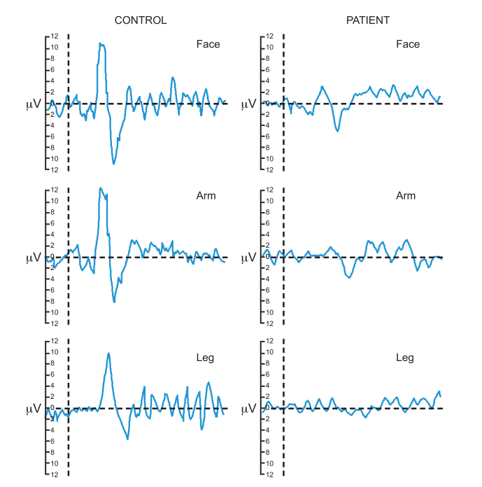 Tепловые вызванные потенциалы (CHEPS) в норме (control) и у пациента с сенсорной полиневропатией тонких волокон (patient)
