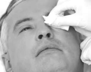 Удаление выделений из глаза салфеткой с фурацилином