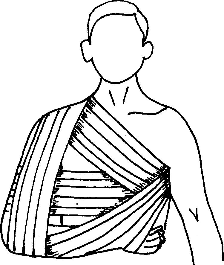 Бинтовая повязка с реклинатором в подмышечной области для иммобилизации плечевого пояса после устранения вывиха плеча