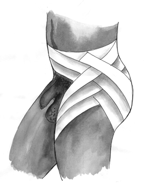 Боковая колосовидная повязка на тазобедренный сустав