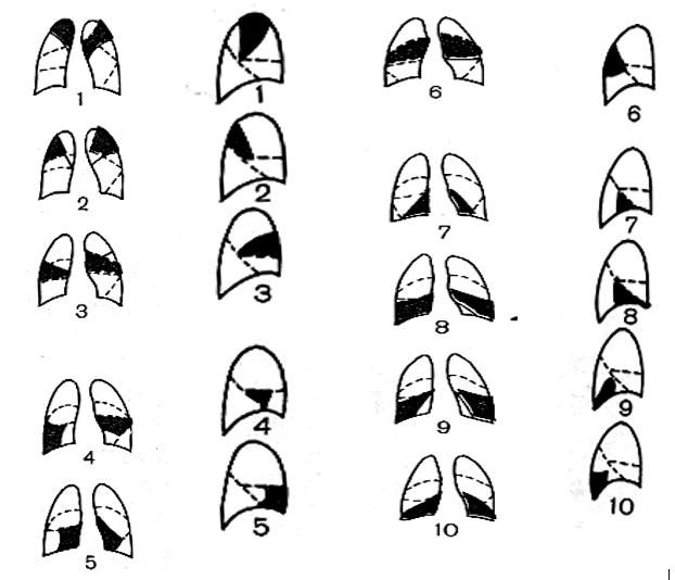 бронхолегочные сегменты в прямой и боковой проекциях