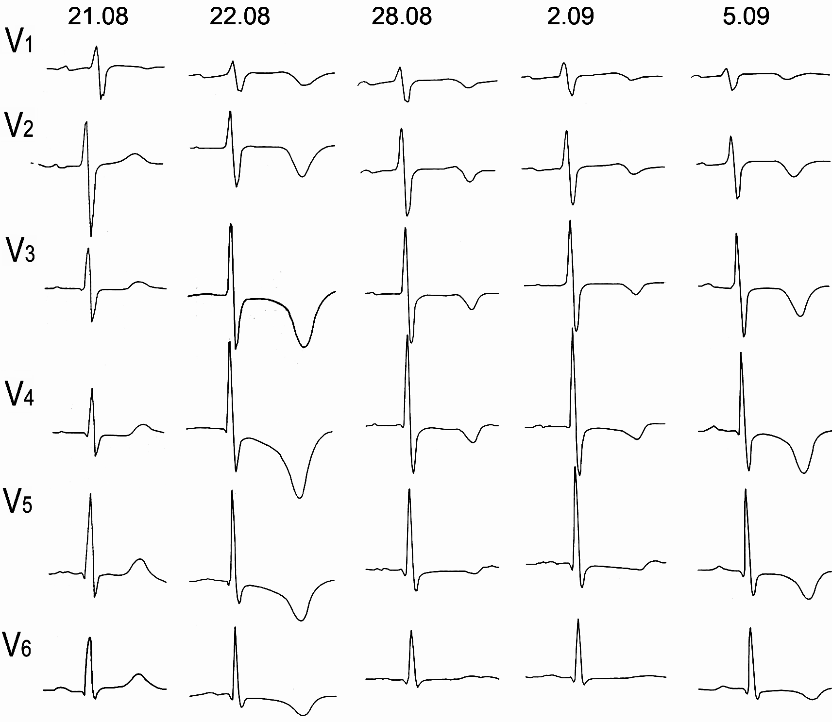 Электрокардиографическая динамика ИМ без зубца Q