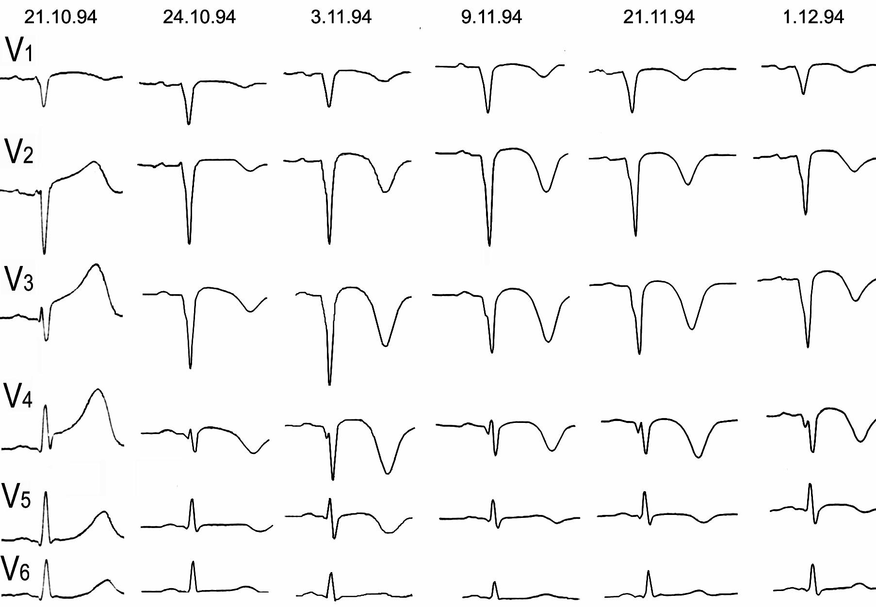 Электрокардиографическая динамика ИМ с зубцом Q