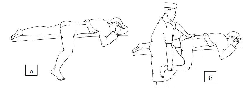 Этапы вправления бедра по методу Джанелидзе
