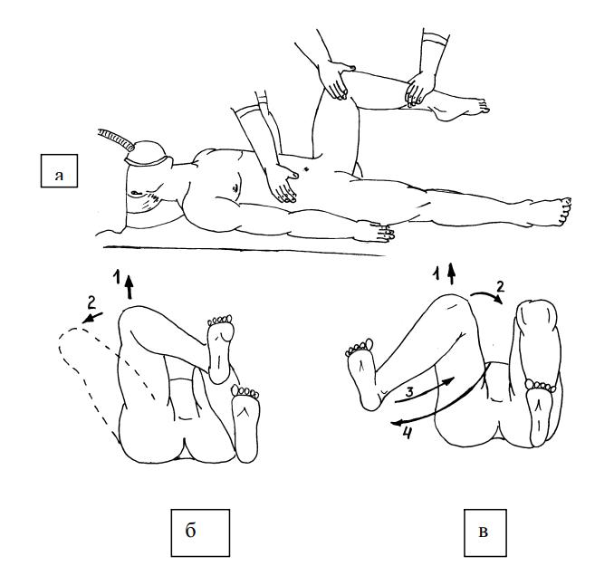 Этапы вправления бедра по методу Кохера
