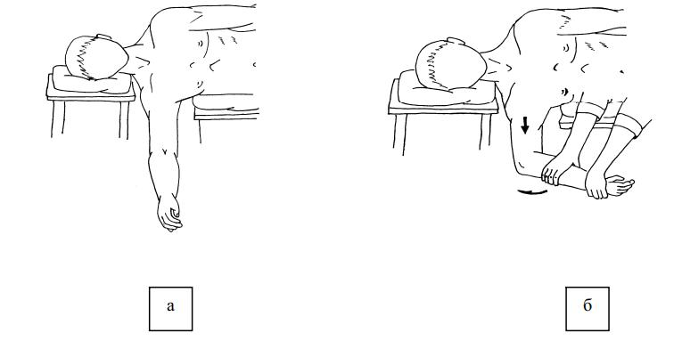 Этапы вправления плеча по способу Джанелидзе