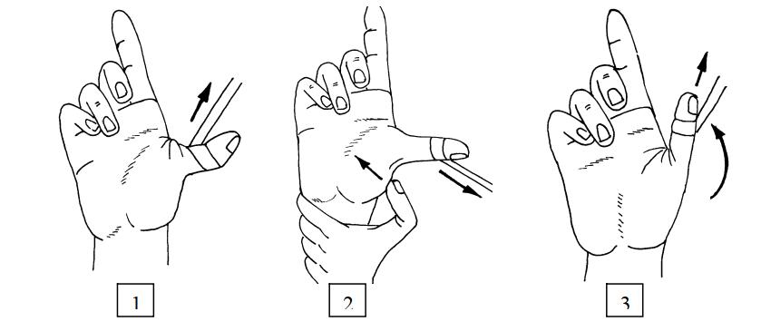 Этапы вправления вывиха основной фаланги пальца