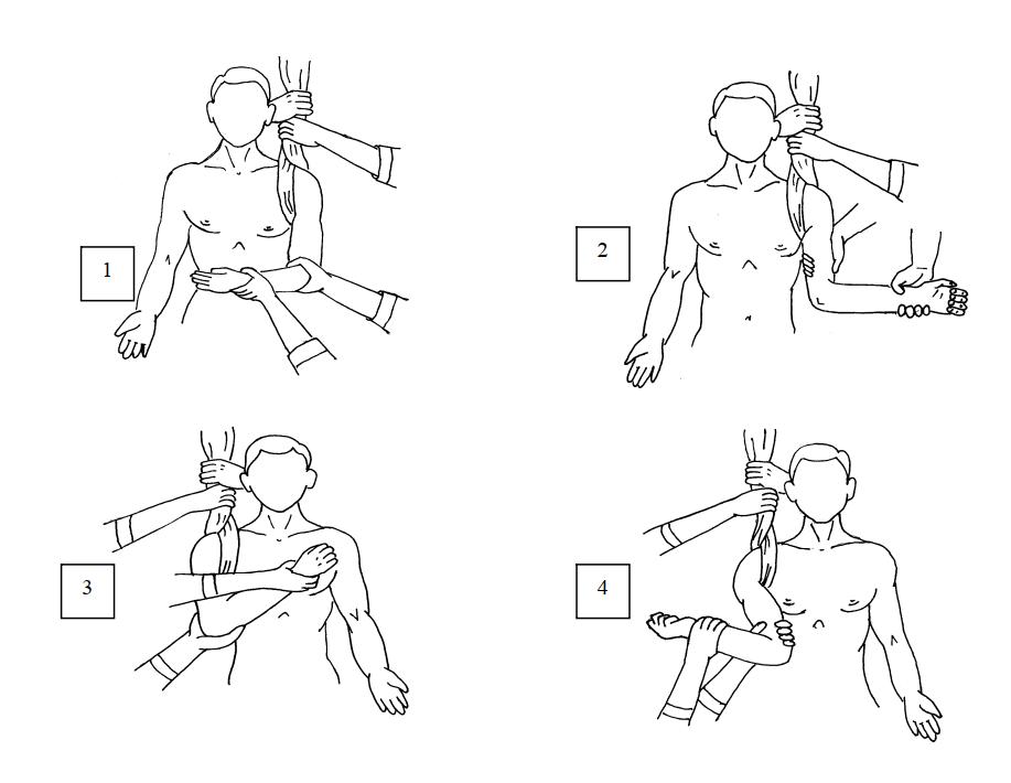 Этапы вправления вывиха плеча по Кохеру