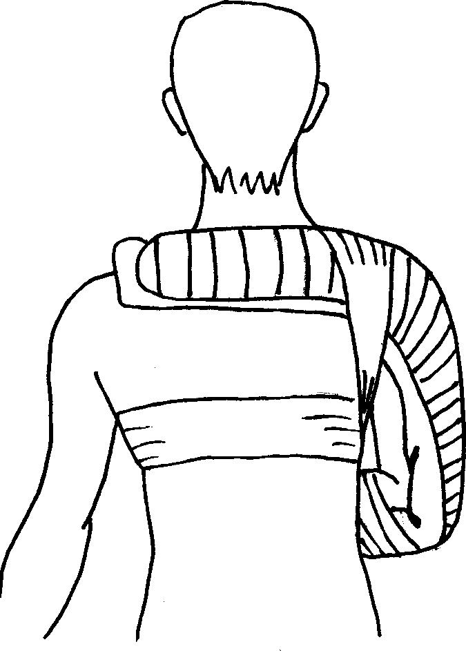 Фиксация поврежденного плечевого пояса при помощи шины Крамера