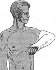 Гипсовая повязка при иммобилизации костей предплечья