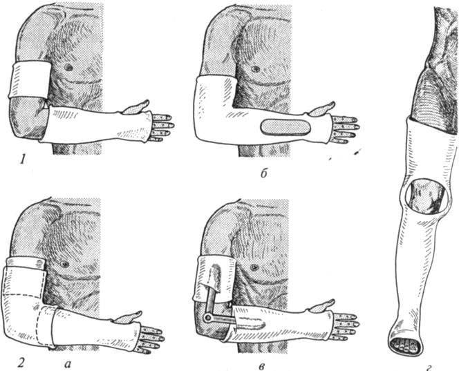 Гипсовые повязки