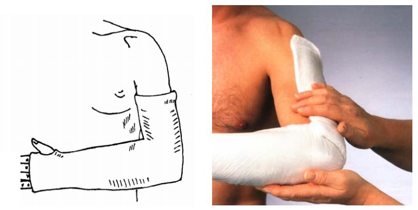 Гипсовый лонгет при иммобилизации костей локтевого сустава