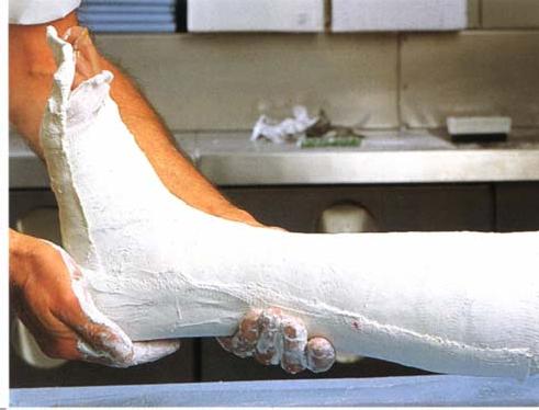 Иммобилизация голеностопного сустава повязкой из целакаста