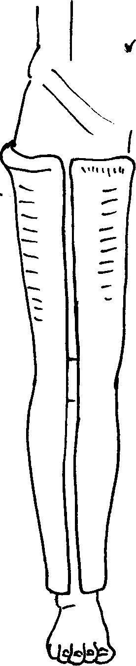 Иммобилизация коленного сустава после устранения вывиха голени