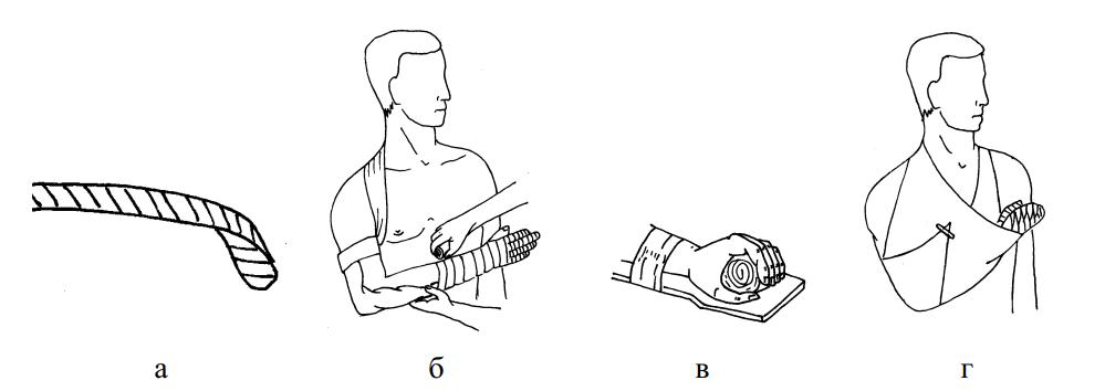 Иммобилизация лестничной шиной и косыночной повязкой при переломах костей кисти и лучезапястного сустава