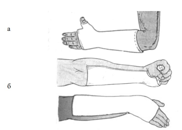 Иммобилизация лучезапястного сустава