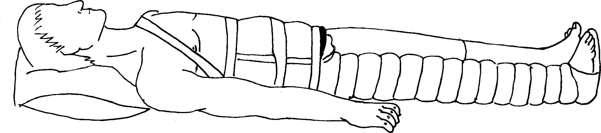 Иммобилизация нижней конечности лестничной шиной Крамера