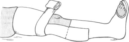 Иммобилизация при переломах костей голени