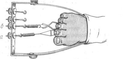 Иммобилизация при переломах костей стопы со скелетным вытяжением