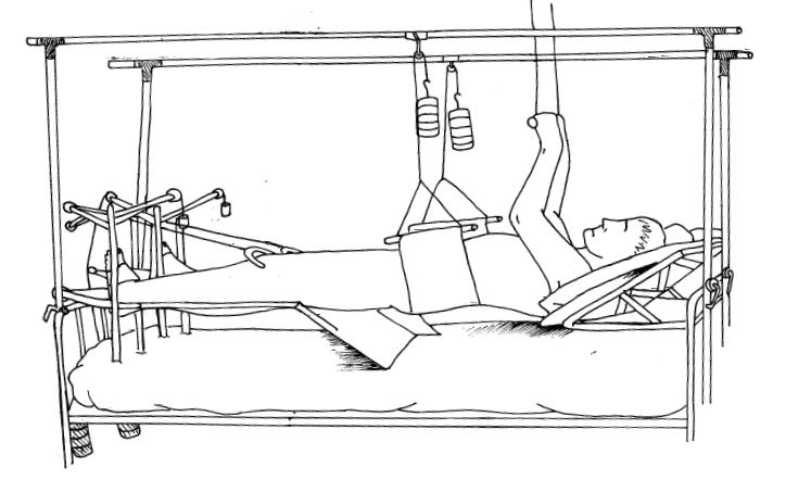 Иммобилизация при переломе костей таза скелетным вытяжением и гамаком