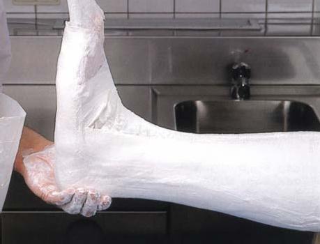 Иммобилизация стопы и голеностопного сустава задней гипсовой лонгетой после устранения вывиха в плюснефаланговых суставах